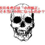 松井珠理奈(SKE48)が小顔に整形したって本当?通っている整体の場所はどこなのか?